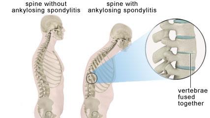 kaluthu vali, muthuku vali,ankylosing spondylitis Homeopathy treatment in chennai, velachery, tamil nadu